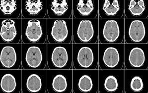 A Letter To My Boyfriend's Brain Surgeon