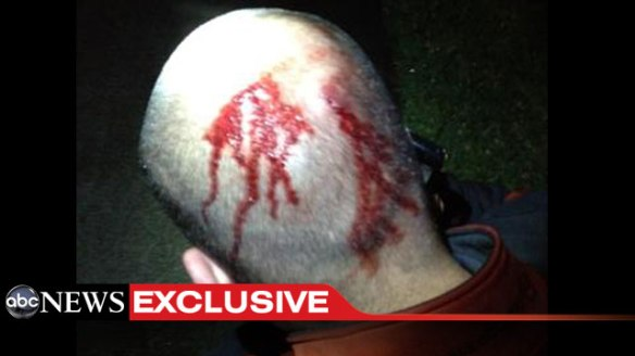 george-zimmerman-bleeding-from-head-wounds