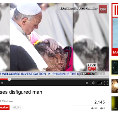 Pope Francis Kisses And Blesses Severely Disfigured Man, Melts Hearts Around The World