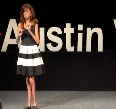 """She Was Called The """"Ugliest Woman In The World."""" Now She Is On Stage To Talk About How She Overcame Bullying."""