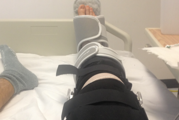 10 Problems Only People With Knee InjuriesUnderstand