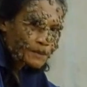16 Terrifying, Bizarre Medical Conditions You've Never Heard Of (That You Might End Up With)