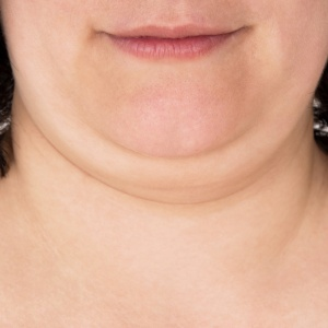 6 Things I Don't Understand About The Fat Acceptance Movement
