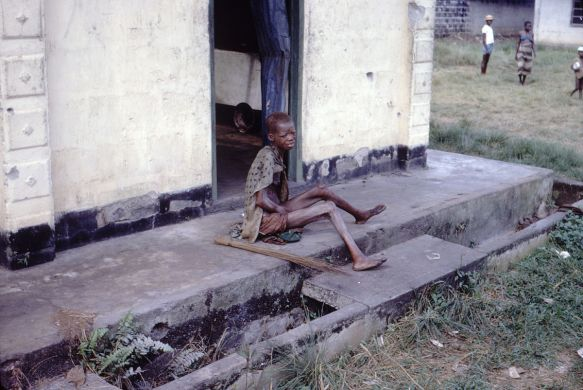 1200px-Starving-woman-africa-biafra-nigeria-conflict-famine