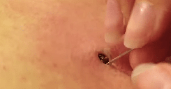 Watch The Insane Removal Of This 25-Year-Old Blackhead