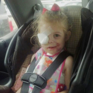 """3-Year-Old Girl Asked To Leave KFC Because Her Facial Scars Were """"Disrupting Customers"""""""