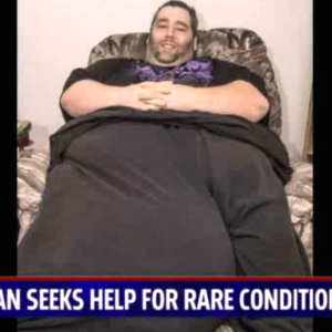 Man Suffering From 100 Pound Testicle Asks The Internet To Help Change His Life