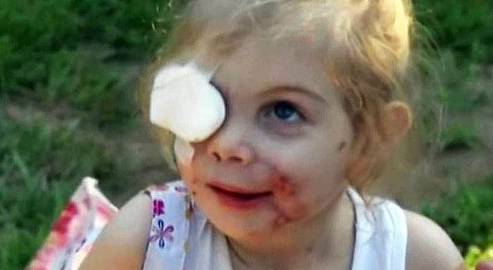 Did This Girl's Relatives Exploit Her Facial Deformities To Get Free Money FromKFC?