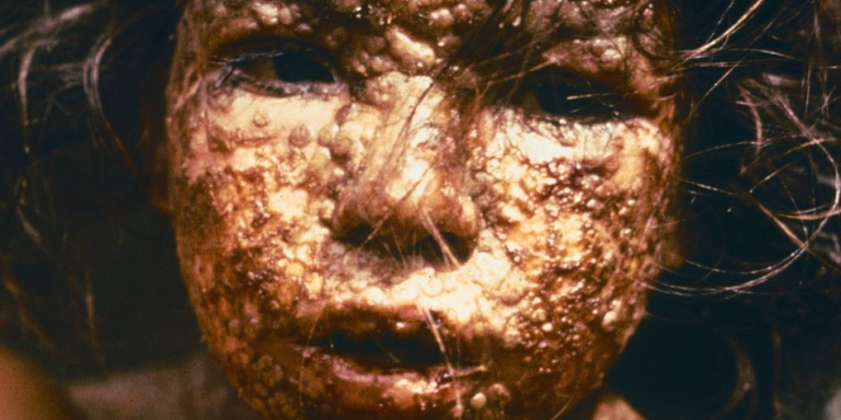 Whoops! World's Deadliest Disease Left Sitting On A Shelf For 60Years