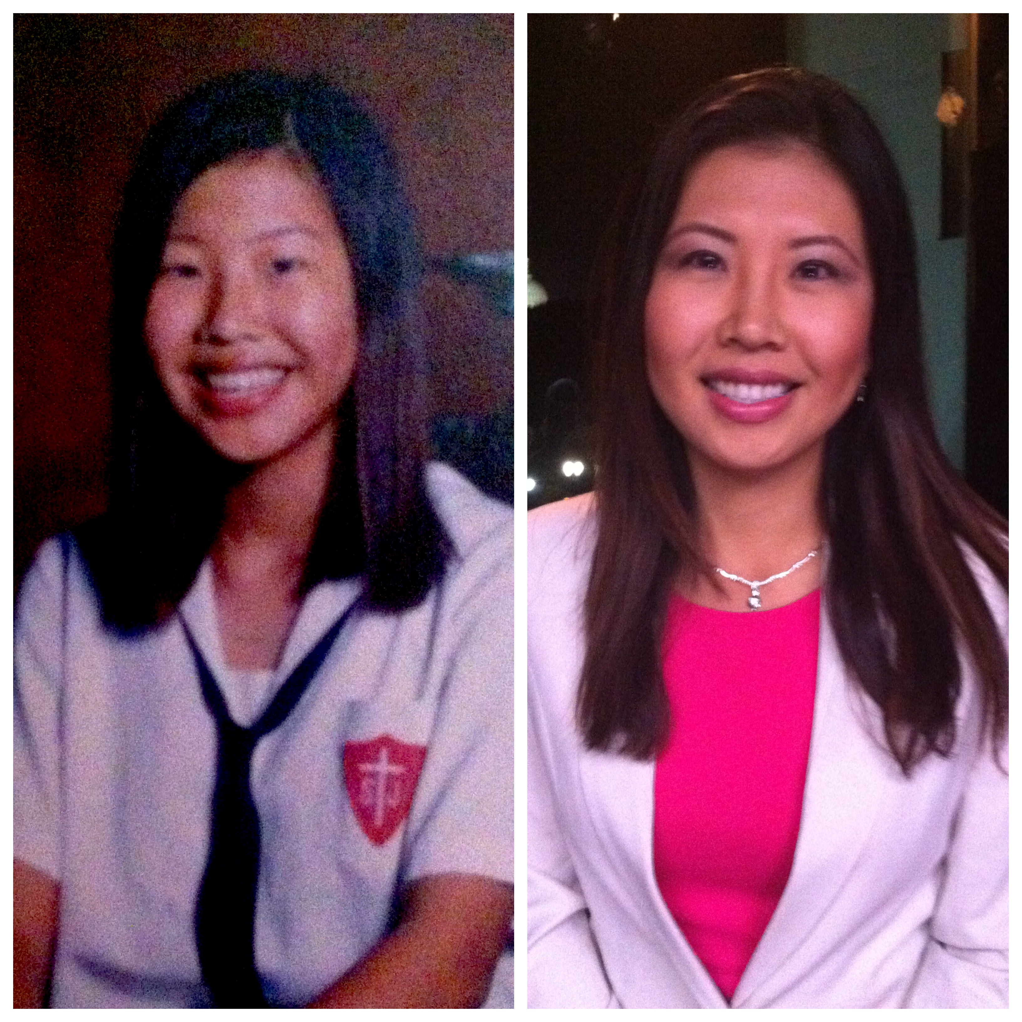 (Left: Pre-surgery, middle school. Right: Smiling now)