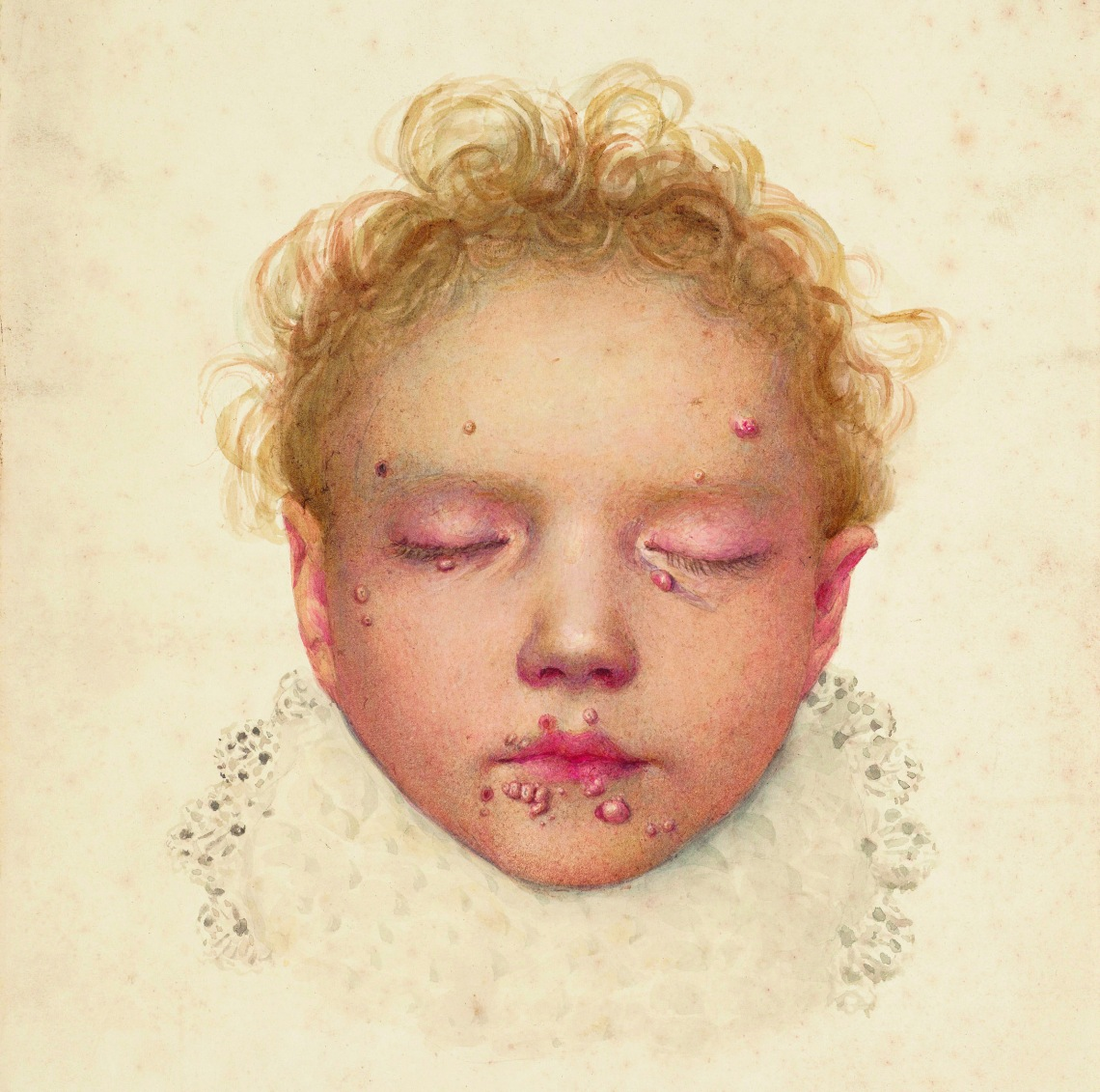 The head of a child with blisters and other lesions affecting the skin. (via)