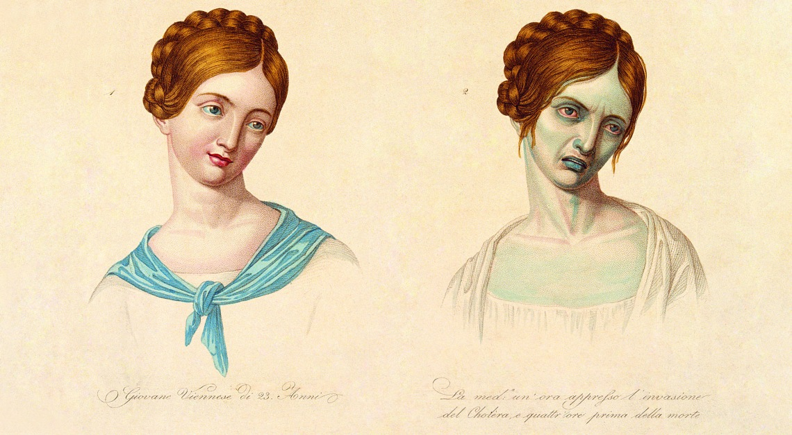 Woman, aged 23, depicted before and after contracting cholera. Coloured stipple engraving. (via)