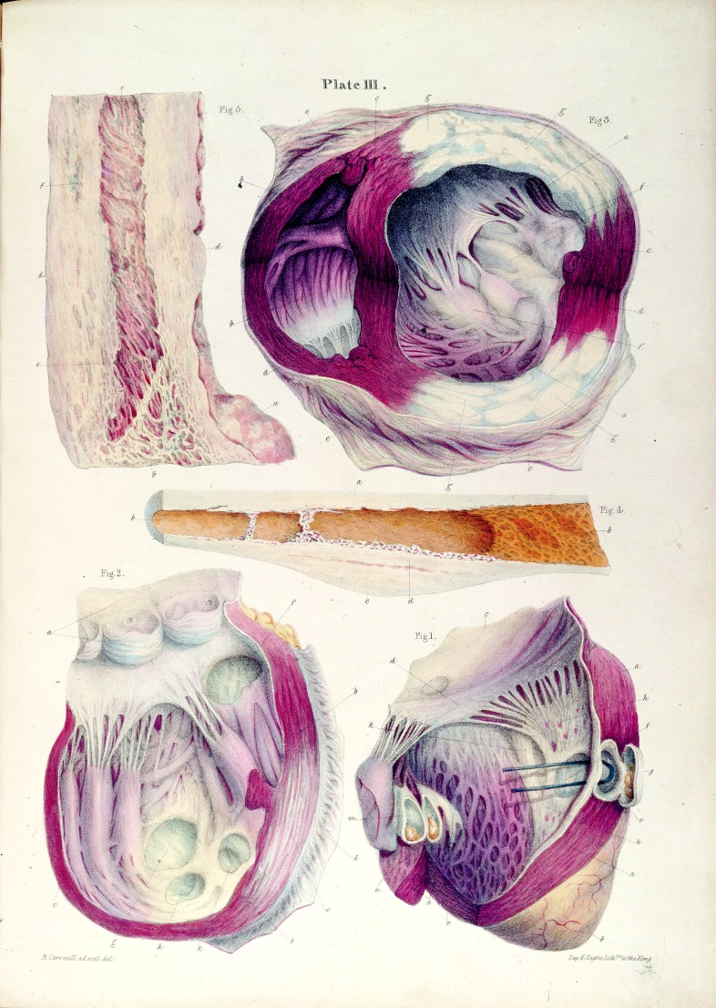 The development of open-heart surgery in the twentieth century depended on, among many other things, a fine- level knowledge of the structure and function of the living heart, as embodied in these illustrations from Robert Carswell's Pathological Anatomy, published in 1838. via