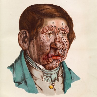 Sick Roses: Disease And The Art Of Medical Illustration