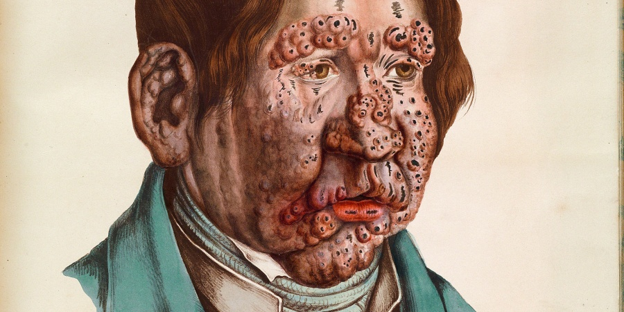 Sick Roses: Disease And The Art Of MedicalIllustration
