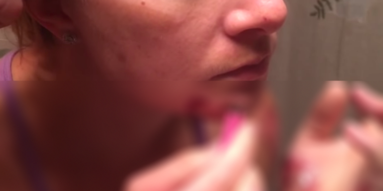 You Won't Believe What This Woman Is Trying To Extract From Her Face(NSFW)