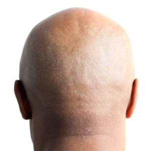 An Appreciation Of Hairless Men