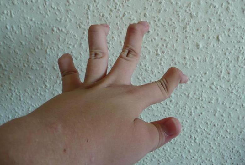 Another example of Ehlers-Danlos_syndromePiotr Dołżonek