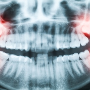 5 Things I Learned When I Had My Wisdom Teeth Removed
