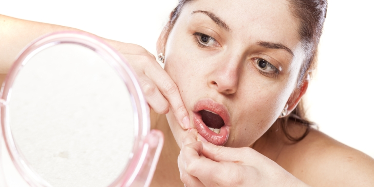 6 Struggles You'll Only Know If You've Had Acne