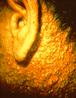Chloracne in this herbicide production worker involved almost every follicular orifice on his face and neck with comedones, papules and cystlike lesions. Source: Wikimedia