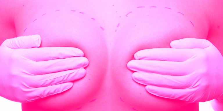 Please Don't Judge Me For Getting A BoobJob