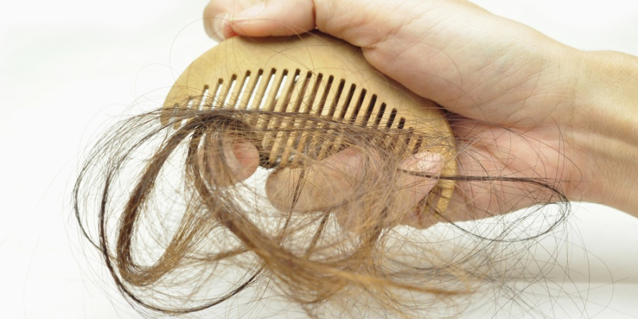 Living With Alopecia: It Is More Than Just Hair Loss