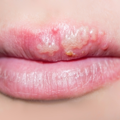 A Woman Decided 'Living With Herpes Is Easy,' So She's Been Having Unprotected Sex With Men Because 'It's Easy To Deal With'