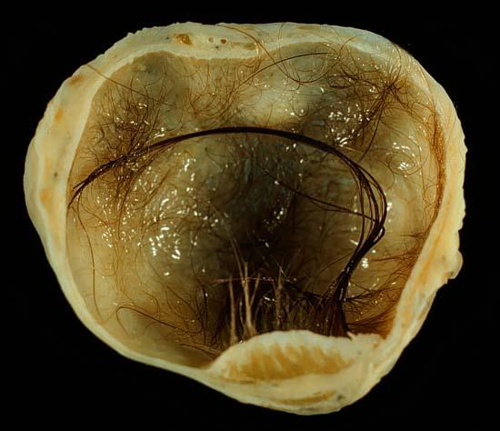 Ovarian teratoma via Wiki Commons