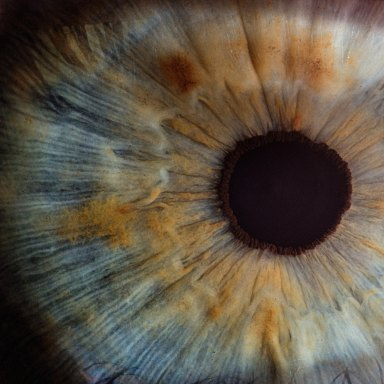 You Might Think Twice About Getting Laser Eye Surgery After You Read This Story