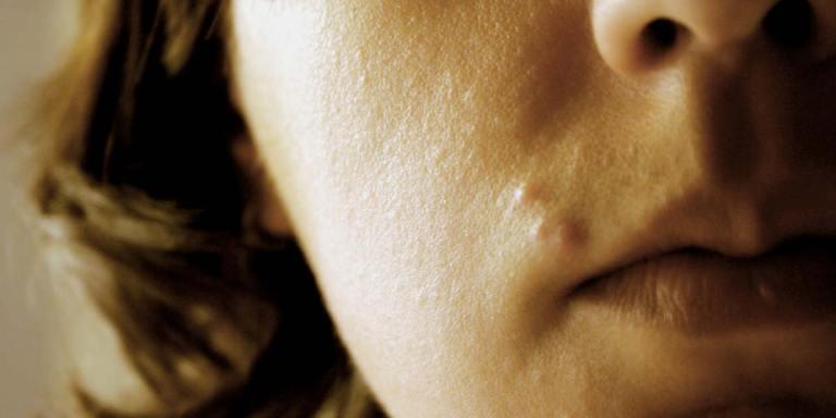Zits Of Doom: 9 Acne-RelatedDeaths