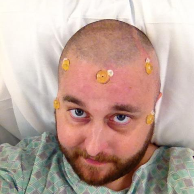 Man With Skin Cancer Chronicles His Journey In This Heart-Wrenching Photo Journal