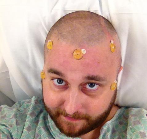 Man With Skin Cancer Chronicles His Journey In This Heart-Wrenching PhotoJournal