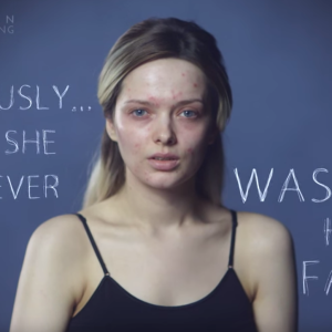 Watch Em Ford's Inspirational Response To The Vicious Comments About Her Acne