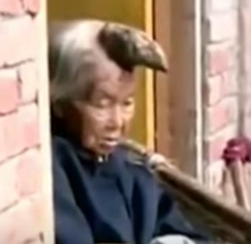 Chinese Woman Can't Decide If She Wants Unicorn Horn Removed From Her Head