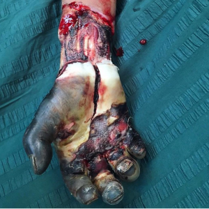 50 Insanely Disturbing Photos Of The Human Body From Actual Medical Procedures