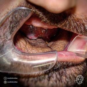 31 Disturbing Photos Taken By A Real Oral Surgeon (NSFL)