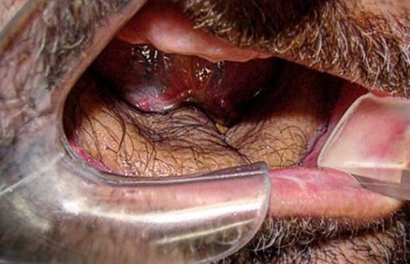 31 Disturbing Photos Taken By A Real Oral Surgeon(NSFL)