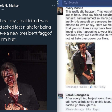 This Gay Man Was Beaten Because, According To Attacker: 'We Have A New President, Faggot'
