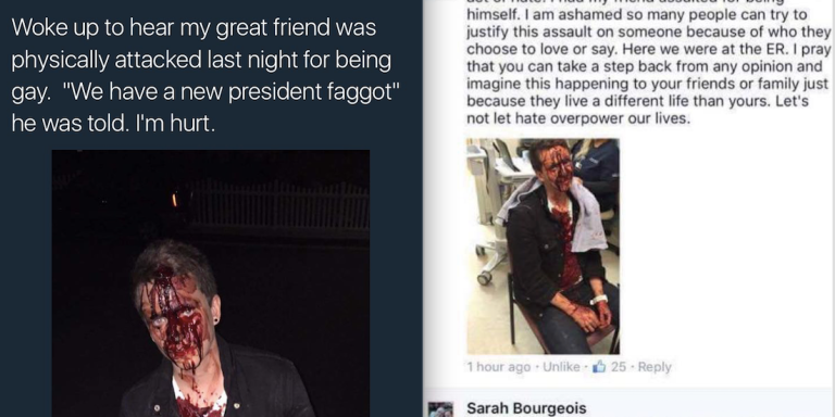 This Gay Man Was Beaten Because, According To Attacker: 'We Have A New President,Faggot'
