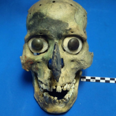 44 Disturbing Photos Of Human Remains (Real And Simulated) From An Actual Pathologist