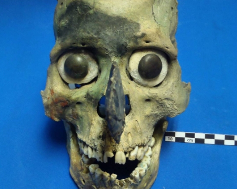44 Disturbing Photos Of Human Remains (Real And Simulated) From An ActualPathologist