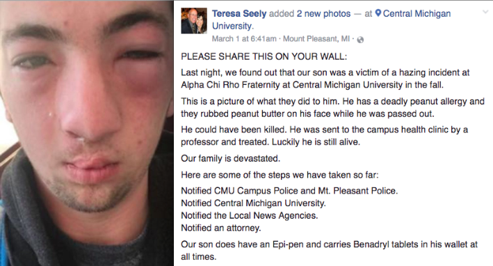 This Guy Just Wanted To Make Some Friends In A Frat, But What They Did Left Him 'Unrecognizable'