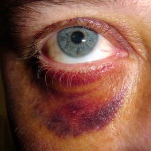 Abused Man Violent Relationship
