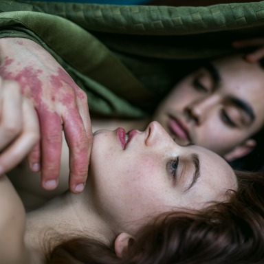 How To Tell Your Partner That You Have Hidradenitis Suppurativa