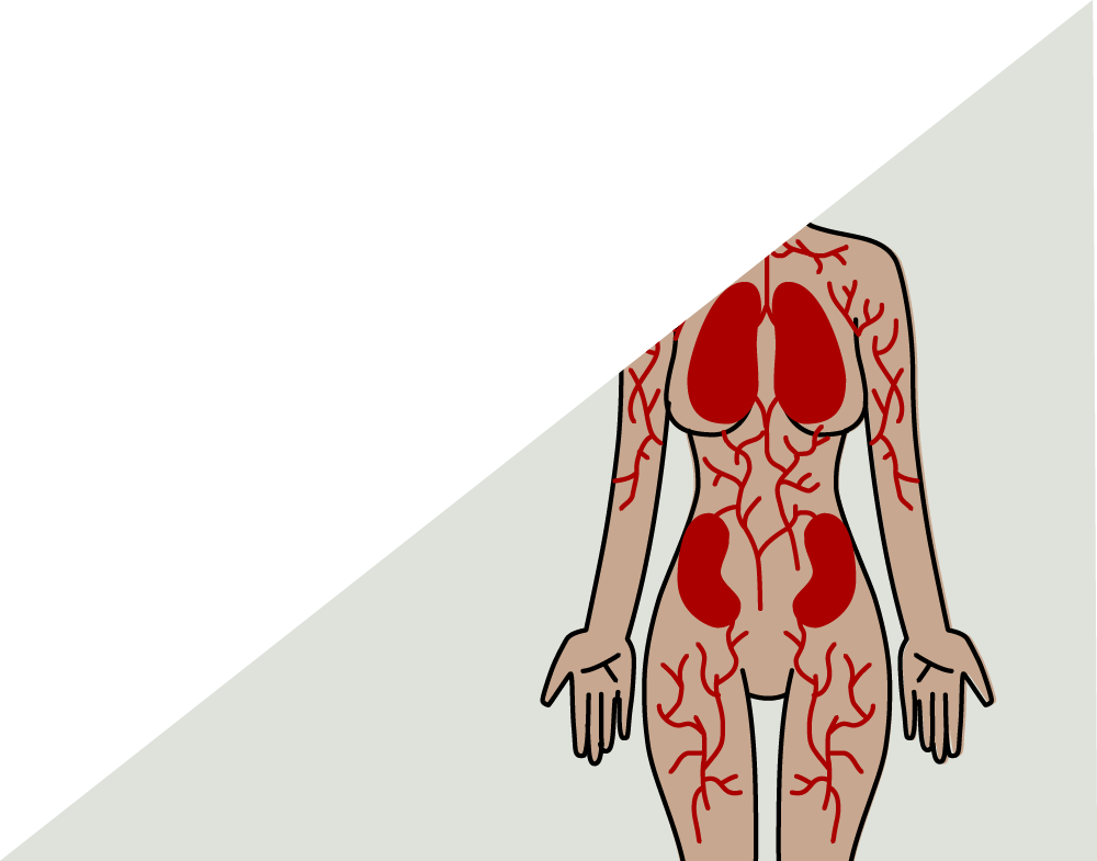 Other Immune Disorders